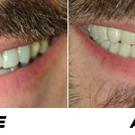 Before and after picture big smile