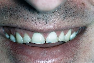 Teeth Grinding (Bruxism) night guards example